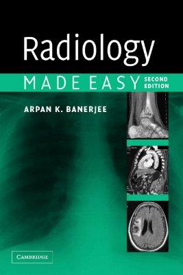 Radiology Made Easy, Banerjee, Arpan K.