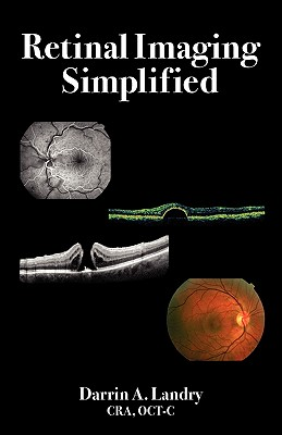 Retinal Imaging Simplified, Landry, Darrin A